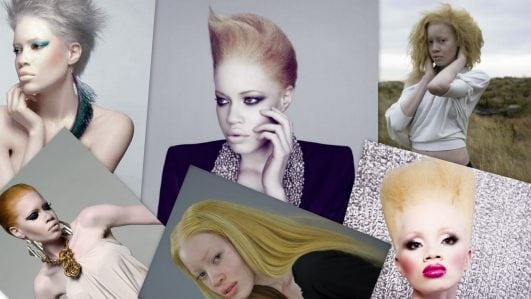 """Top 5 Most Beautiful """"Albinism"""" People in the world."""